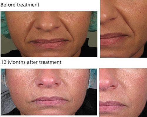 Tratamiento con ácido Hialurónico: indicado para la corrección de arrugas