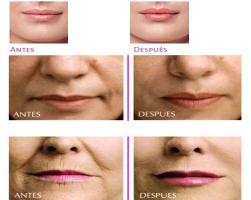 Tratamiento perfilado y/o aumento de pómulos y labios