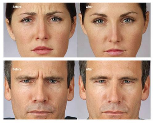 Tratamiento botox corrección de arrugas.