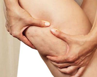 tratamiento mesoterapia corporal