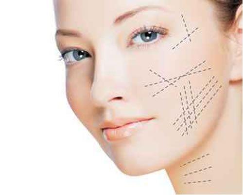 Tratamiento Flacidez rostro con hilos tensores. Indoloro, sin hematomas.
